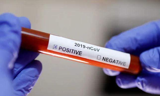 No coronavirus case reported in Nagaland  (Representational Image)
